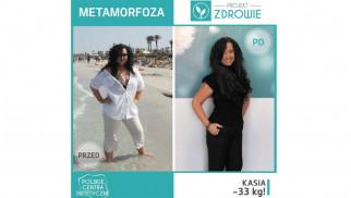 Kolejna wspaniała metamorfoza – Pani Kasia schudła 33 kg
