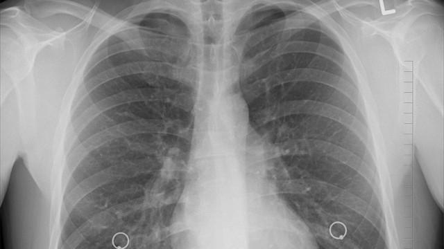 Sprawdź, czy masz zdrowe płuca