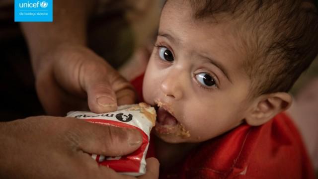 Świat przegrywa walkę z niedożywieniem – FILM, FOTO