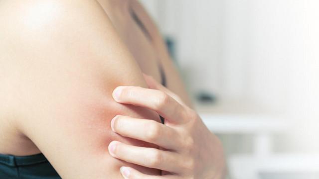 Wysypka alergiczna – jak ją rozpoznać?